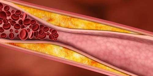 Aukstas_cholesterolis